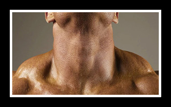 Топ лучших упражнений для укрепления мышц шеи