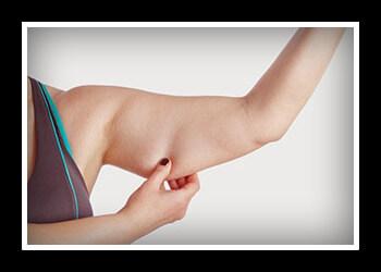 Как избавиться от мышц на руках