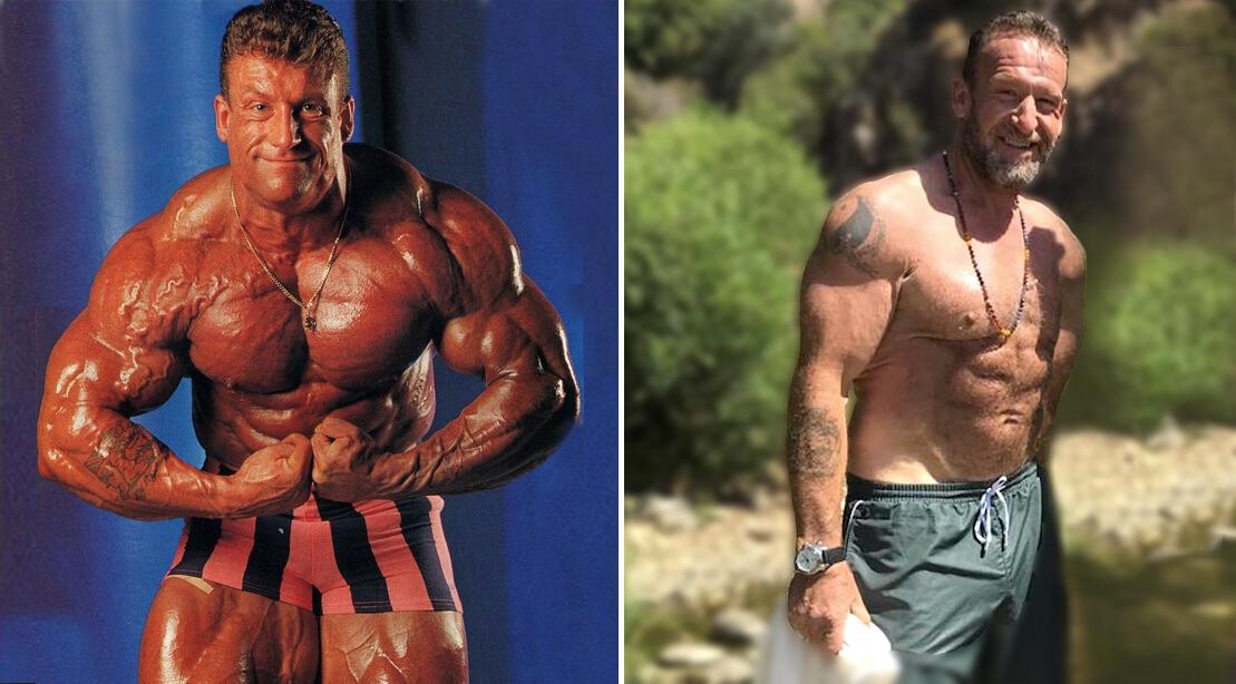 Дориан Йейты: фото до и после 4.